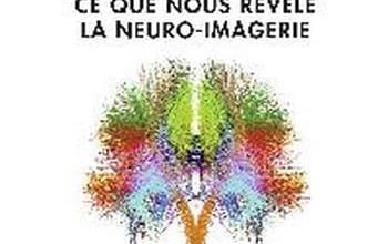 Photo de Denis le Bihan – Le Cerveau de cristal