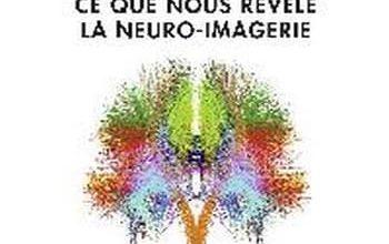 Photo of Denis le Bihan – Le Cerveau de cristal